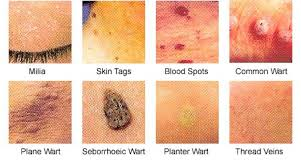 Home Remedies For Planters Warts by Useful Home Remedy For Warts Tea Time Health