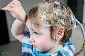 cerebral palsy and seizures cerebral palsy guidance