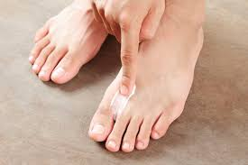 yellow nails toe nail fungus treatment essential oils medicine to treat toenail fungus and athletes