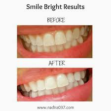diy diy teeth whitening beautiful home design top and diy teeth