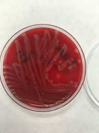 e coli on tsa it has beta hemolysis micro pinterest