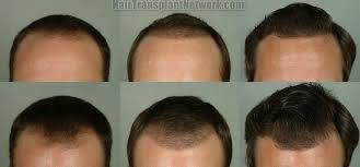 hair transplant month by month pictures hair restoration surgery results from a 2254 graft transplant at