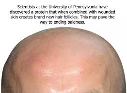 new hair growth discoveries 394 best baldness cure images on pinterest bald spot natural