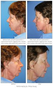 hairstyles for women with sagging necks before after neck lift and liposuction lipocontouring for