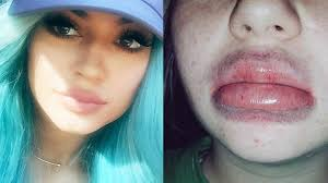 Challenge How To Do It Jenner Lip Challenge Isn T A Tutorial