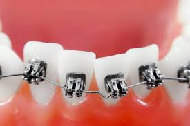 nickel free braces braces dr s e monehi orthodontics