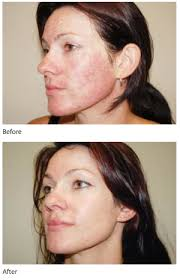 intense pulsed light review intense pulsed light ipl before and after photo ipl photo