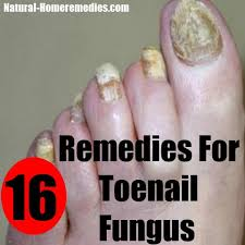 16 home remedies for toenail fungus how to treat toenail fungus
