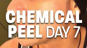 chemical tan chemical peel day 7 25 tca peel youtube