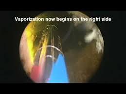 green light laser treatment enlarged prostate surgery for bph treatment with greenlight laser