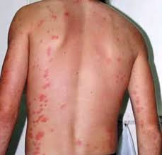 Do Bed Bug Bites Itch Aesthetic Laser And Skin U2013 Healthy Skin U0026 More
