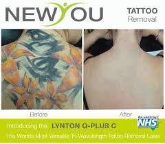 laser tattoo removal in birmingham