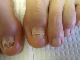 fungal nails fungus infection bacteria discolored toenail sports