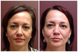 melasma treatments edina skin rejuvenation clinic 55435 laser