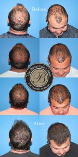 neograft recovery timeline hair restoration in knoxville the breazeale clinic
