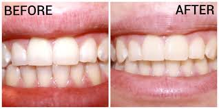 luster pro light teeth whitening system reviews i tried luster premium white teeth whitening products and here s how
