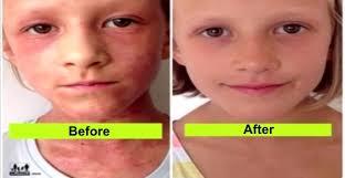 to use raw food diet to treat eczema
