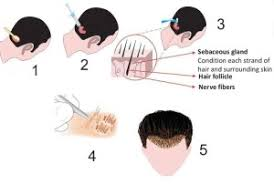 hair transplant calculator fue hair transplant technique follicular unit extraction in pune