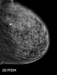 3d mammogram ge senographe pristina 3d mammography system
