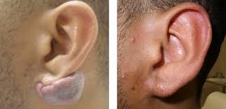 pressure earrings keloids treatments los angeles la santa