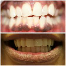 Groupon Teeth Whitening Chicago Caresa Doakes Dds Llc Home Facebook