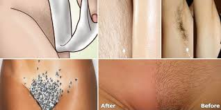what is the latest pubic hair style remove unwanted body hair such as pubic hair