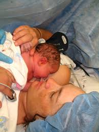 single delivery skin to skin contact following a cesarean fight for it it s your