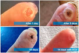 How Do You Get Rid Of A Planters Wart by How To Use Apple Cider Vinegar For Warts Removal At Home