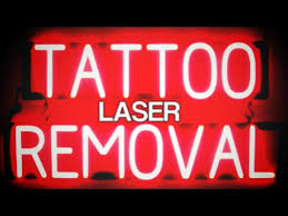 picosure laser tattoo removal