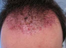 constant ingrown hairs on pubis ingrown hair on scalp pictures causes symptoms infected cyst