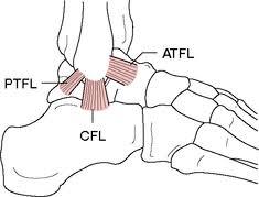 Posterior Inferior Tibiofibular Ligament Anterior Talofibular Ligament Definition Of Anterior Talofibular