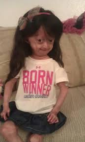 Adalia Rose Meme - this girl was born with a disease and fights everyday she is