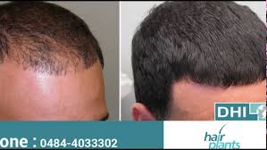 dhi hair transplant reviews hair transplant cochin hairplants india youtube