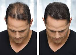 declan donnelly hair transplant 16 best hair transplant review images on pinterest hair