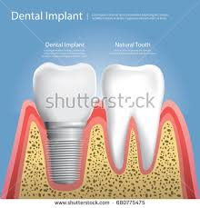 Human Dental Anatomy Dental Implant Real Tooth Anatomy Closeup Stock Vector 534298963