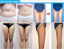 lipo light laser treatment reviews marvelous light laser lipo f81 about remodel image collection with