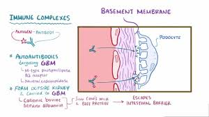 acute kidney injury aki genitourinary disorders merck