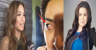 Becoming Blind Aiko Melendez Was This Close To Becoming Blind Because Of Maja