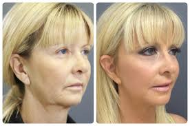 hairstyles that cover face lift scars mini face lift perth medaesthetics