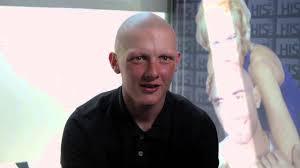 15 year old hair cut 15 year old boy has alopecia treatment done at his hair clinic