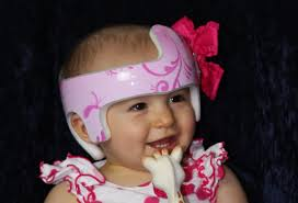 doc band wraps free cranial band and helmet wraps in utah of wraps