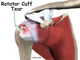 Anatomy Of Rotator Cuff Bicipital Tendonitis Houston Methodist