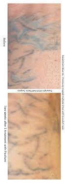 austin picosure com austinpicosure com a tattoo removal nurse u0027s