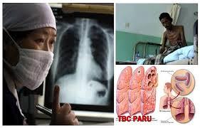 Obat Tbc obat tbc paru tradisional uh menyembuhkan tbc dengan cepat