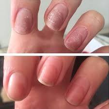 damaged nails healed by the power of rescuerxx daily keratin