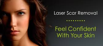 advanced laser skin clinic removal treatments barrie ontario