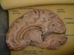 806 brainlab