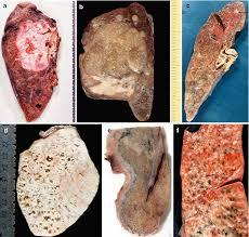 cuisine uip ik lung tumors springerlink