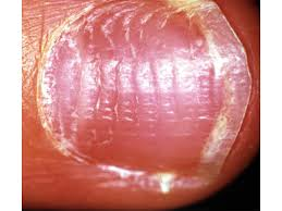 nail abnormalities mclean u0026 woodbridge va