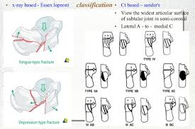 Subtalar Joint Fracture Calcaneum Fractures